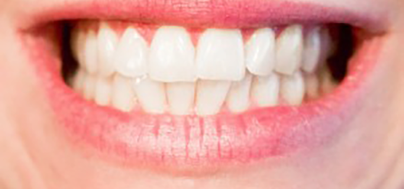 Mount Sinai Dentist discusses how cleaner teeth contribute to healthier aging