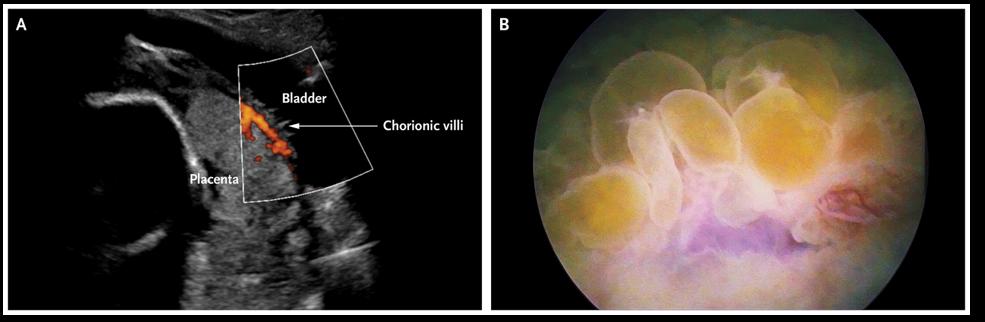 Image of Placenta Percreta invading the maternal bladder