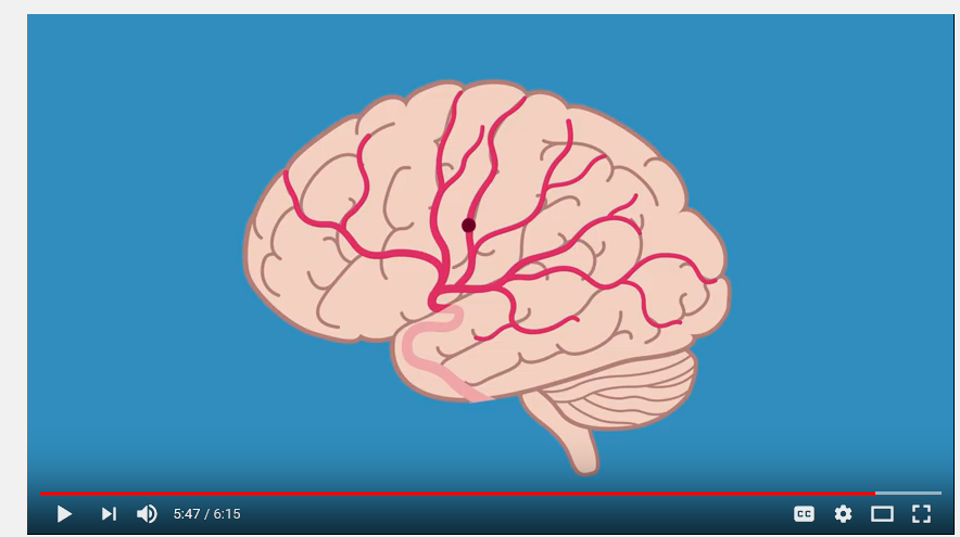 Video 1: Introduction to Stroke