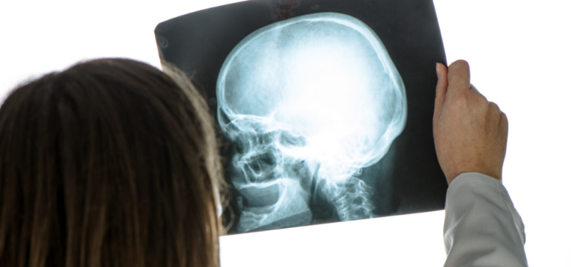 New research encourages light exercise following concussion